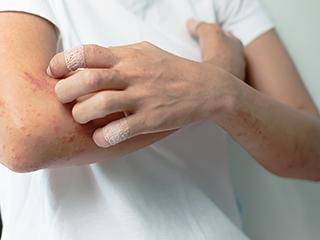 角化症 乾癬など
